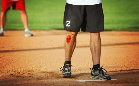 Common High School Baseball injuries