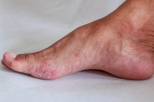 Facts About the 4 Most Common Fungal Infections and How to Treat Them