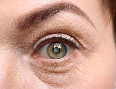 Cataracts: Causes and Symptoms You Need to Know