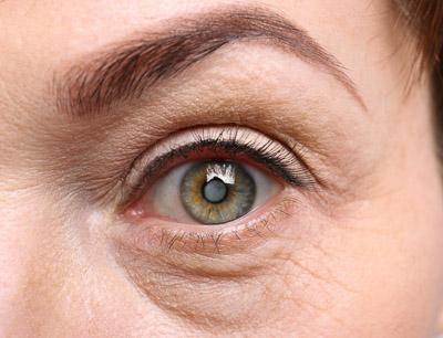 Photo of Senior woman's eye, closeup, with white over cornea