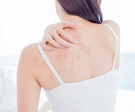 Dry Skin During Winter