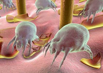 Dust Allergies - Dust Mite Allergy