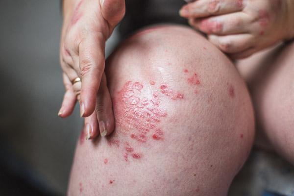 Photo of a woman's knee with eczema rash