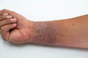 wrist with eczema