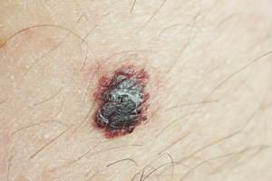 Photo of a Mole which is different from Melanoma