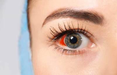 vitreous hemorrhage - Bleeding around the eye